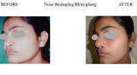 3-Nose-Reshaping-Rhinoplasty-8-1