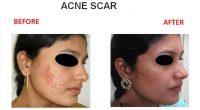 Acne-Scar-1