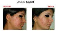 Acne-Scar-5