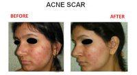 Acne-Scar-6