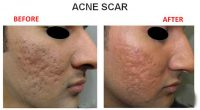 Acne-Scar-7