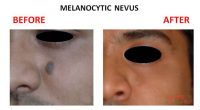 Melanocytic-Nevus-1