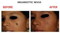 Melanocytic-Nevus-3