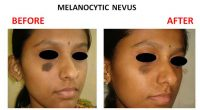 Melanocytic-Nevus-4