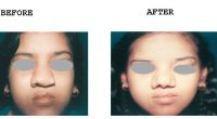 Nose-Reshaping-1-1
