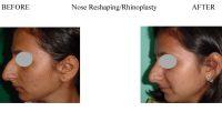Nose-Reshaping-Rhinoplasty-5-1