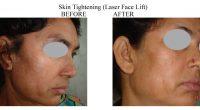 Skin-Tightening-2-1