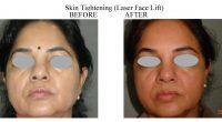 Skin-Tightening-4-1