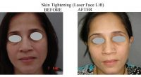 Skin-Tightening-7-1