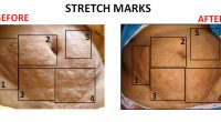 Stretch-Marks-1