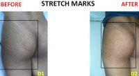 Stretch-Marks-4