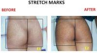 Stretch-Marks-5