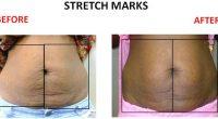 Stretch-Marks-9