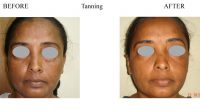 Tanning-1