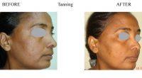 Tanning-2