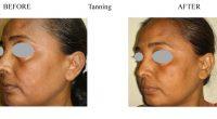 Tanning-3