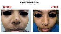 mole-removal-10