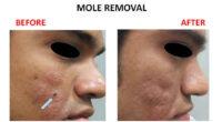 mole-removal-4