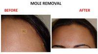 mole-removal-6