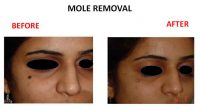 mole-removal-7