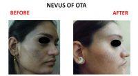 nevus-of-ota-4