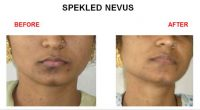 speakeld-nevus-1