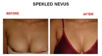 speakeld-nevus-2