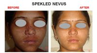 speakeld-nevus-3