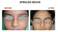 speakeld-nevus-4