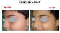 speakeld-nevus-6
