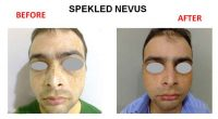 speakeld-nevus-7