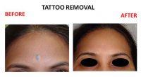 tatto-removal1