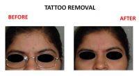 tatto-removal3