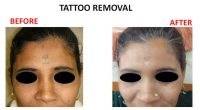 tatto-removal6