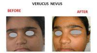 verucus-nevus-1