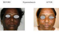 Hypermelanosis-11
