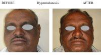 Hypermelanosis-51