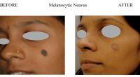 Melanocytic-Neavus-2