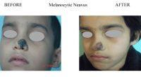Melanocytic-Neavus-3