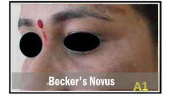 becker's-nevus