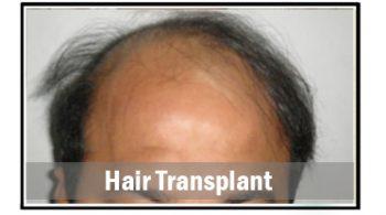 hair-transplant-1