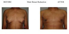 1-Male-Breast-Reduction-4