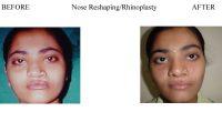 1-Nose-Reshaping-Rhinoplasty-6