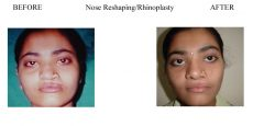 1-Nose-Reshaping-Rhinoplasty-6