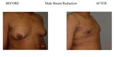 2-Male-Breast-Reduction-5