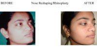 2-Nose-Reshaping-Rhinoplasty-7