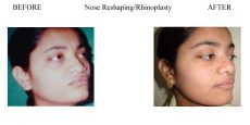2-Nose-Reshaping-Rhinoplasty-7