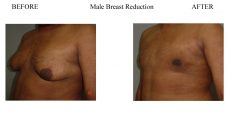 3-Male-Breast-Reduction-6