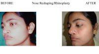 3-Nose-Reshaping-Rhinoplasty-8