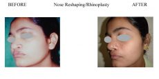 3-Nose-Reshaping-Rhinoplasty-8